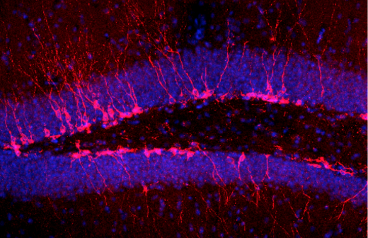 neurons shown in red and blue